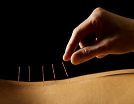 Physiotherapist applying acupuncture to client